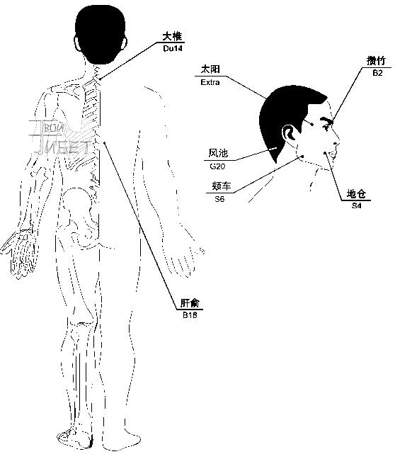 Схема лечения магнито-вакуумными массажными банками мигрени,паралича лицевого нерва и невралгии тройничного нерва.