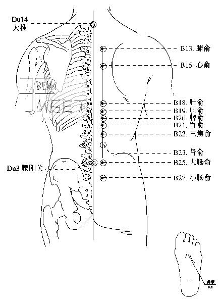 Схема подготовки к лечению