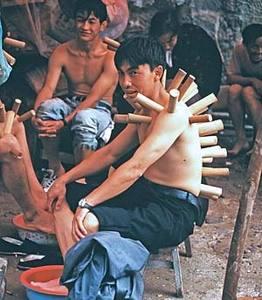 Вакуумный массаж бамбуковыми банками